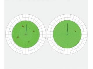 Incoatec射线源用于织构分析